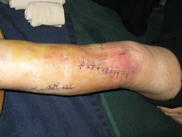 Post surgery sexy leg.